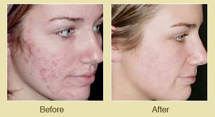 Smoothbeam LASR for Acne and Acne Scars