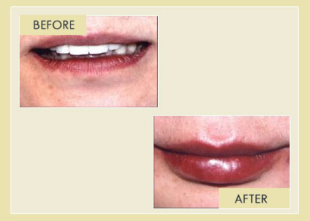 Facial Rejuvenation - Lips Augmentation