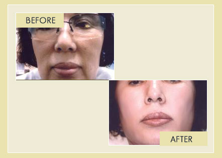 Facial Rejuvenation - Removal of Laugh Lines