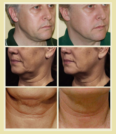 Sculptor Non-Surgical Treatments - Thermage