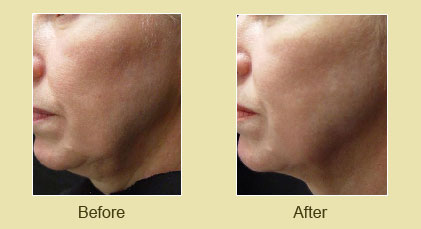 Titan Laser Treatment